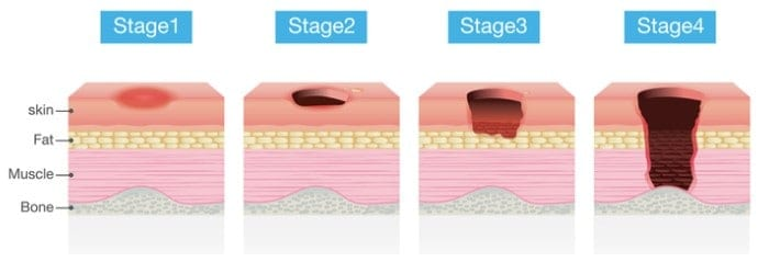 Pressure Area Care Training layers of the skin