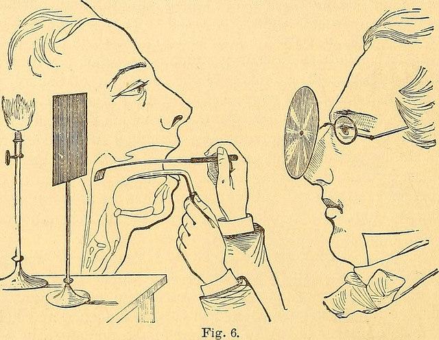 throat-examination-1874