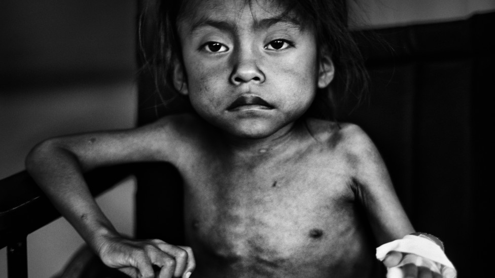 UNICEF Photo of the Year 2011 / Photo: JM Lopez