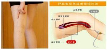 有靜脈曲張要即時就醫接受治療 p1163-a6-02