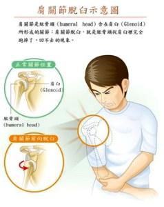 關節脫臼時不要亂動,應就醫由醫師協助復位。