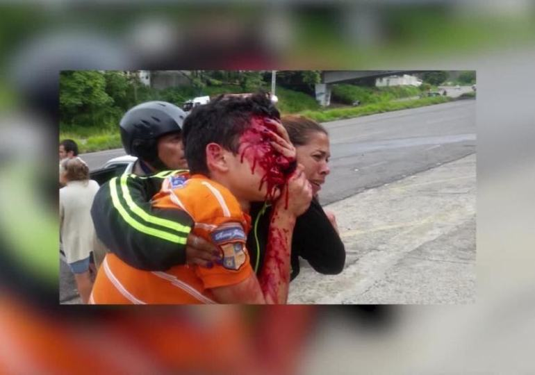 teen blinded by police brutality following peaceful protest