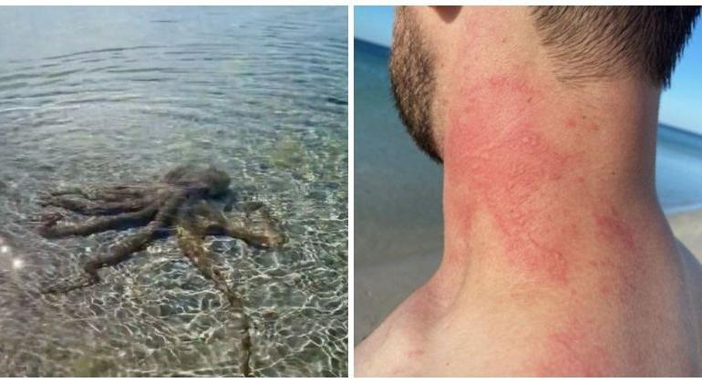 Man beaten up by 'angry octopus'