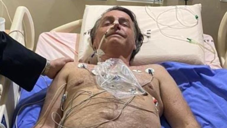 After 10 days of hiccups, Brazil's Bolsonaro may need surgery