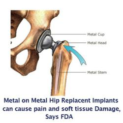 metal on metal hip replacement implants