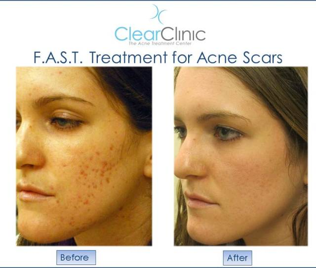 F A S T Procedure Results For Acne Scars