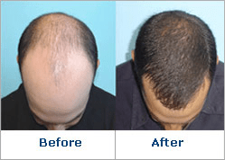 Provillus New Hair Loss Product Provides Hair Regrowth For