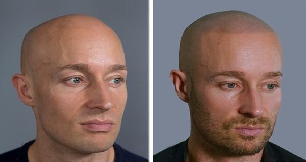 Bald Men In Toronto Now Have A Reason To Feel Sexier