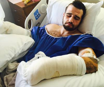 Stanislav Petrov was hospitalized for almost two weeks after two Alameda County Sheriff's deputies beat him with batons.