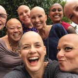 Bay Area Bald Girls Say 'It's Only Hair'