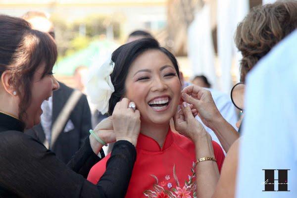 Gummy Smile Update :  wedding beauty san diego Hanssie02 hanssie02