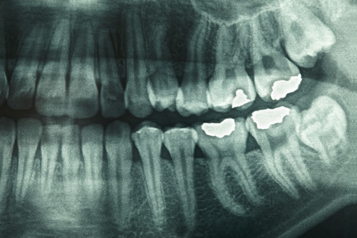 How Safe Are Dental X Rays What S Involved And Why They