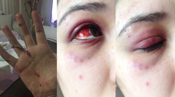 Avukat sevgilisi genç kızı feci şekilde dövdü