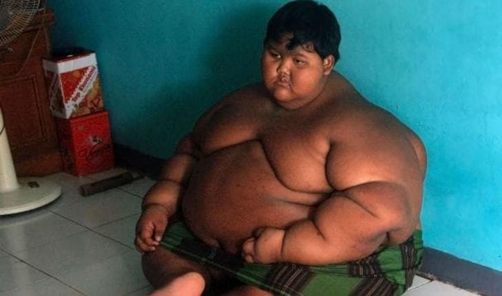 Lembra dele? Caso do menino mais gordo do mundo repercute; respire fundo antes de ver quanto ele emagreceu