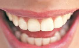 Rêver des dents
