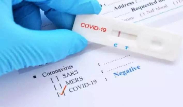 Covid Test Negatif