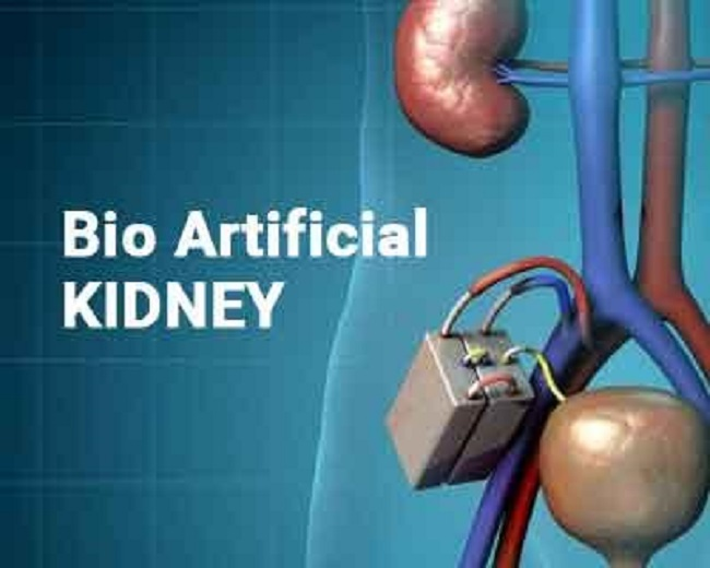 End Stage Renal Failure