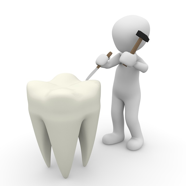 root canal vs tooth extraction