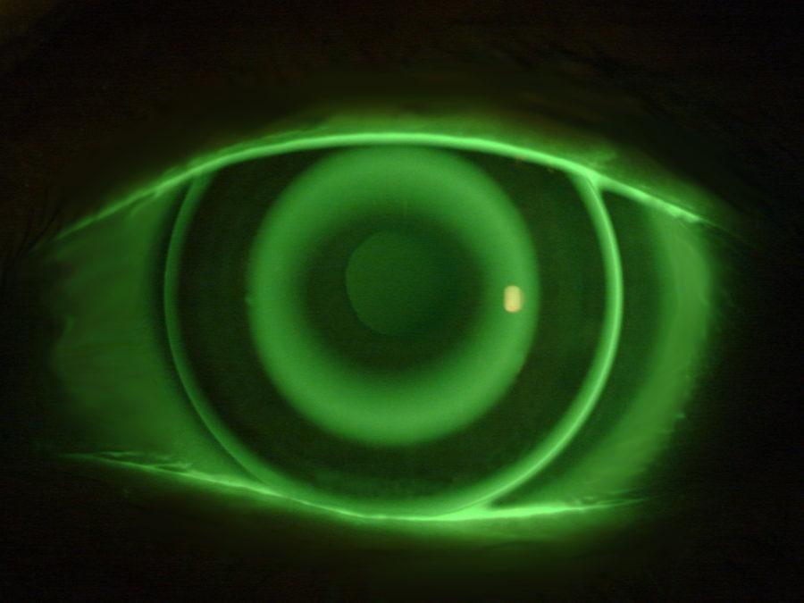Lenti a Contatto Notturne Per Ortocheratologia dopo instillazione di Fluoresceina per valutare geometria e design della lente