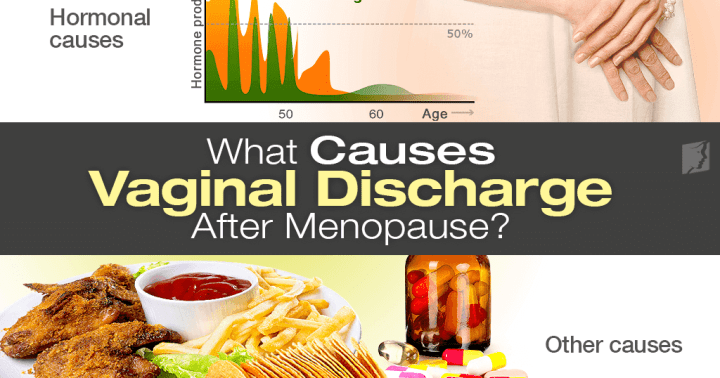 light brown spotting after menopause   Decoratingspecial.com