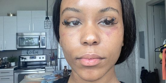 Lady beaten by her lesbian girlfriend; Shares photos of shows off her bruised face and neck 1