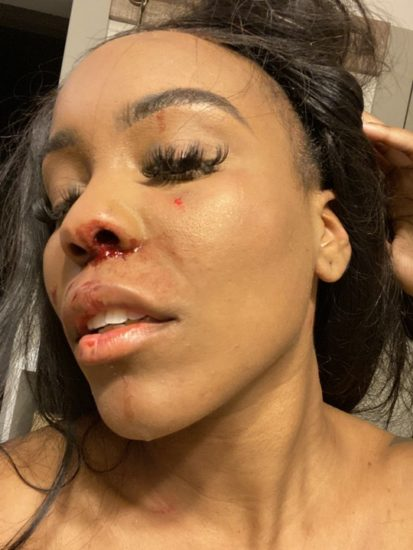 Lady beaten by her lesbian girlfriend; Shares photos of shows off her bruised face and neck 3