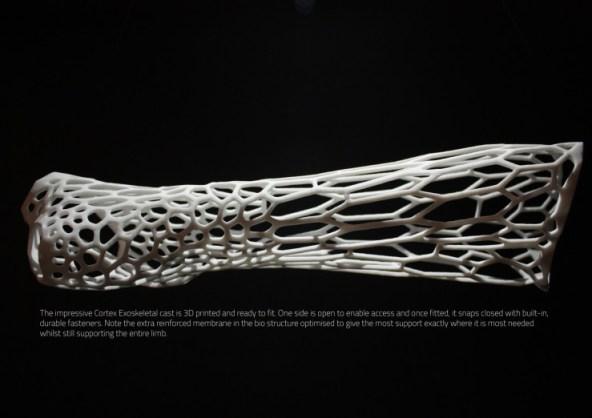 cortex-cast-3Print
