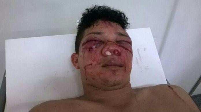Raimundo Irineu Alves Serra é acusado de participar da morte do servidor público Francisco Alves de Lima/Fotos: Selmo Melo/Agência ContilNet