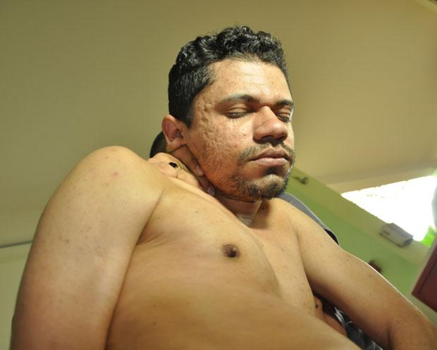 Segundo a polícia, Márcio Rodrigues atacava as crianças no meio da rua/Foto: Selmo Melo