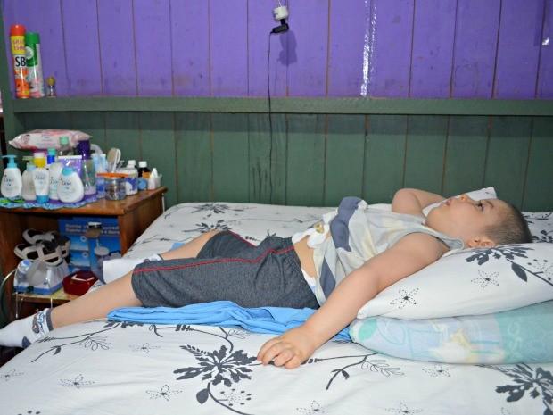 O garoto de 3 anos não fala, não anda e só se alimenta através de uma sonda na barriga (Foto: Tácita Muniz/G1)