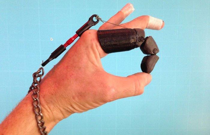 knick finger 3d printed prosthetic  finger