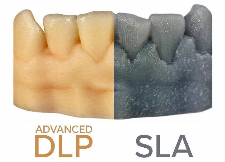 dlp vs sla surface finish comparison