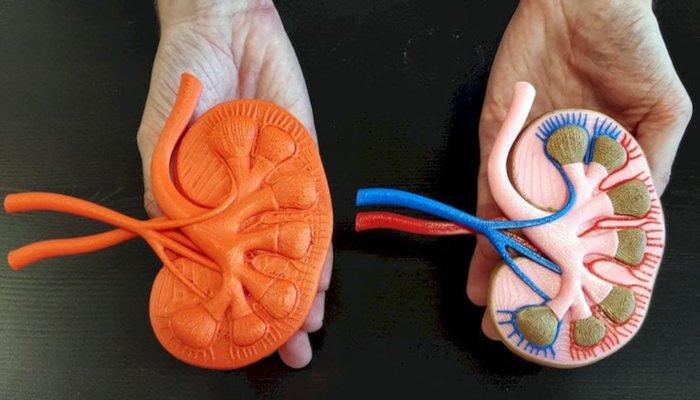 multi color medical 3D print using palette 2s