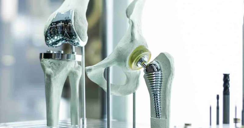 3d printed orthopedic medical implants