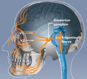 trigeminal-neuralgia-disease