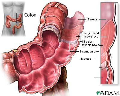سرطان القولون أسباب وأعراض سرطان القولون