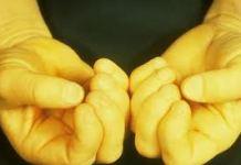 ما الفرق بين انيميا الحديد و انيميا الامراض الوراثية