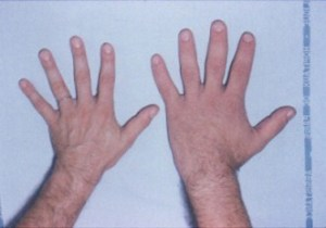 Acromegaly_hands