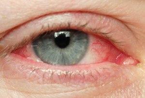 istock_photo_of_eye_with_redness