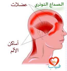tension-headache
