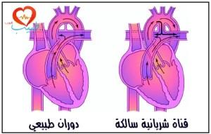 طبيب ع قلبية قناة شريانية