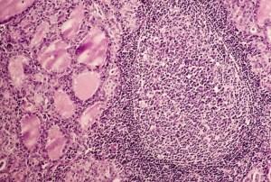 hashimotos-follicle-thyroid-glands-2-1024x691