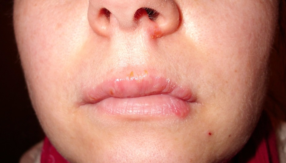 How to prevent the spread of the herpes virus