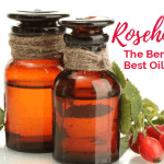 Rosehip Oil – Benefits & the Best Oils to Try.
