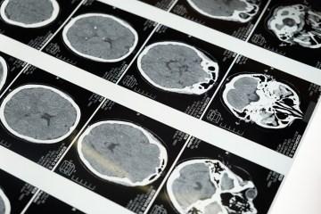 Brain Injury Lawyer in Baltimore