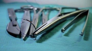 common surgical errors