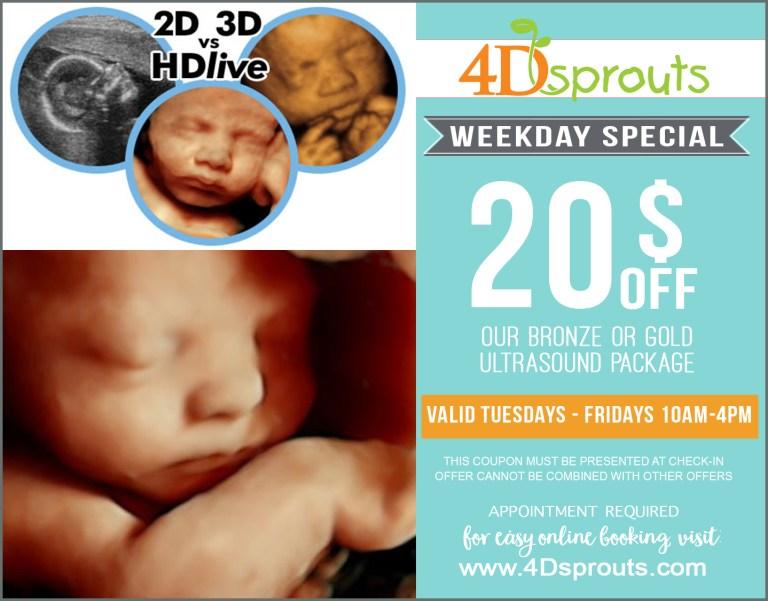 coupons discounts 4d ultrasound sarasota florida 3d ultrasound