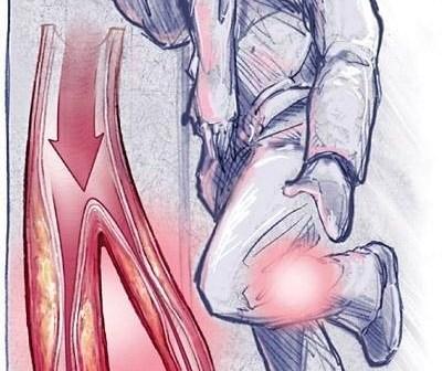 الدوالي ، علاج الدوالي ، أسباب الدوالي ، أعراض الدوالي