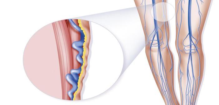 علاج دوالي الساقين بالطرق الطبيعية