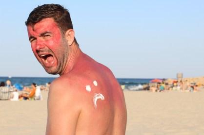 Ein Mann mit Sonnenbrand